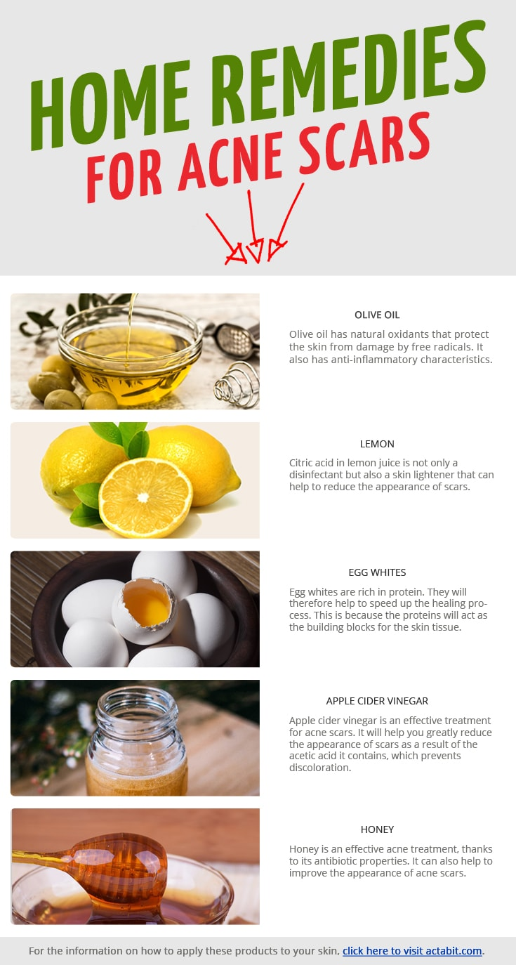Get the 5 best home remedies for acne scars. Get rid of acne scars and reduce redness and swelling of pimples overnight.